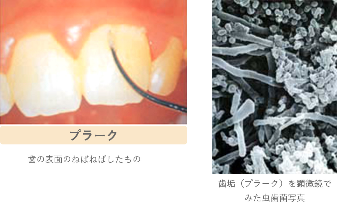 病菌 歯 周